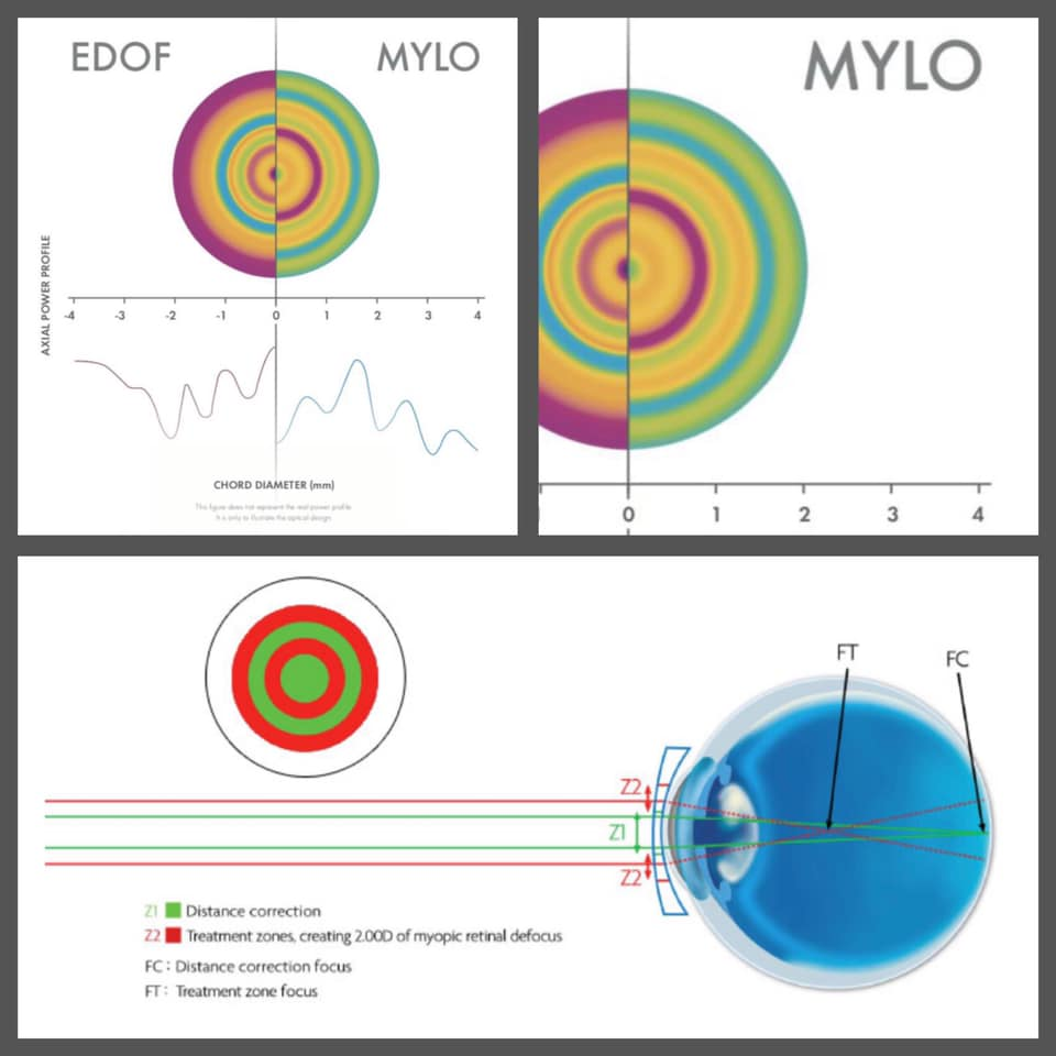 Chart comparing EDOF to MYLO
