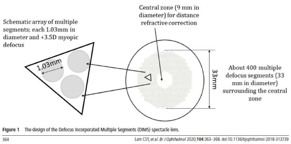 Myopia Control Spec lens design 1