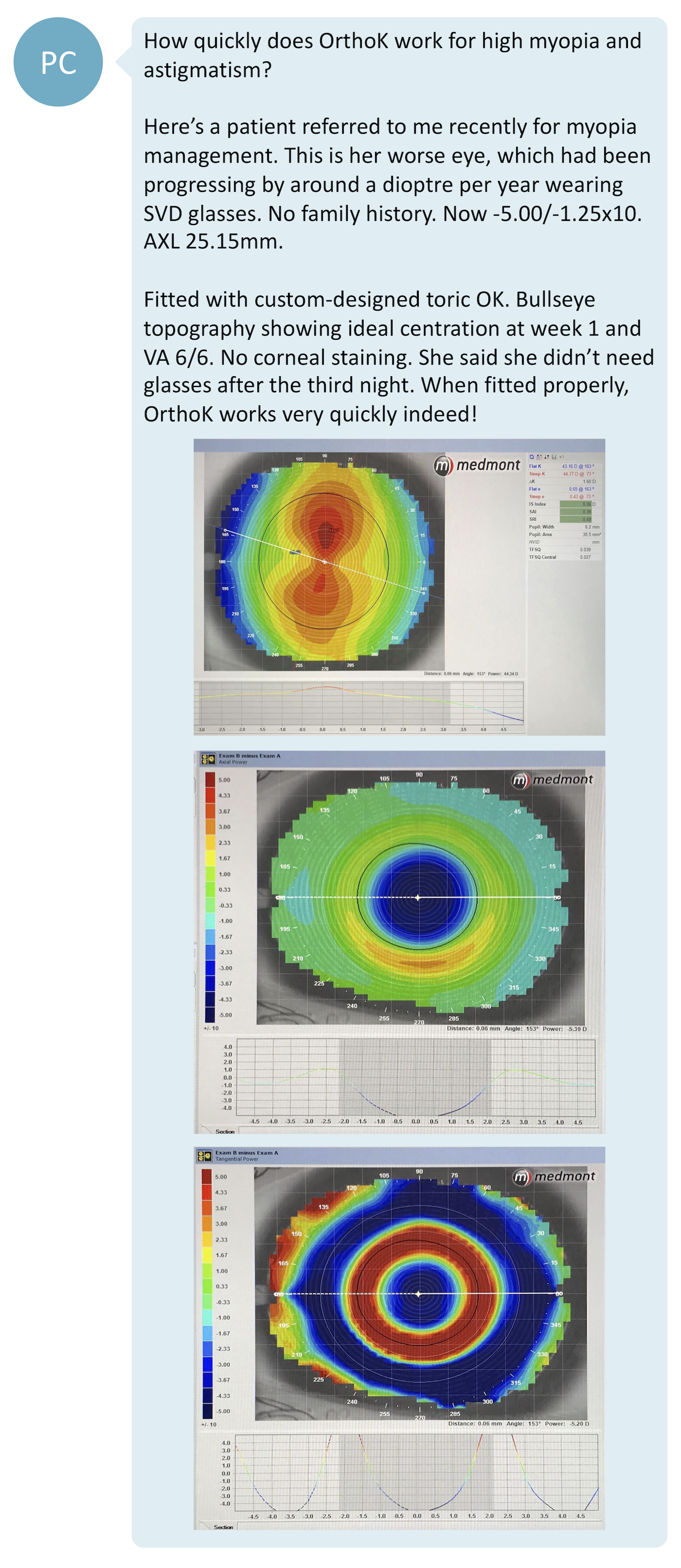 Corneal Topography for OrthoK